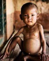Kadiskes Riau, Mimi: Kami Sudah Intervensi 800 Anak Gizi Rendah di Rohul Itu