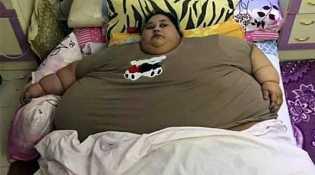 Wow... Miliki Berat Badan 500 Kg, Wanita ini Akan Jalani Operasi Bariatrik