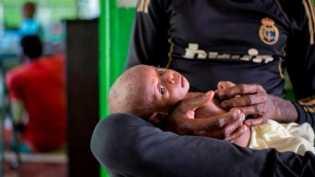Kematian anak akibat gizi buruk di Asmat berlanjut meski KLB sudah berakhir