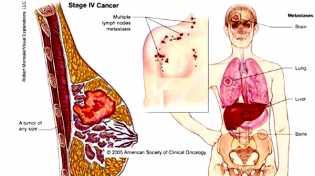 Wanita, Ini 7 Makanan Pencegah Kanker Payudara
