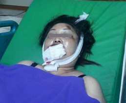 Terseret 12 Meter Saat Dijambret, Wanita di Pekanbaru ini Tewas