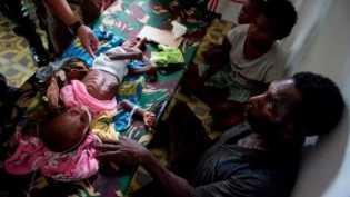 Kunjungi Indonesia, pelapor khusus PBB untuk hak atas pangan soroti kasus gizi buruk di Papua